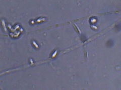 Wild Temecula Grape Yeast (Bryan    Doty) Tags: wild home beer brewing images micro yeast sour brew microscope bacteria cantillon drie fonteinen brettanmonyes