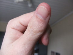 DSCF6985 (ongle86) Tags: ongles nails rongés biting pouce thumb sucé sucking doigts fingers hand mains fetishisme