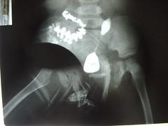 fistula_recto_vesical_2 (radiologiaum) Tags: recto urología vejiga gastroenterología fístula fístularectovesical