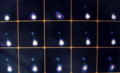 rvug007 (radiologiaum) Tags: clasificación urología vejiga cugm gamagrafíadmsa cistogamagrafía reflujovesicoureteral