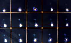 rvug007 (radiologiaum) Tags: clasificacin urologa vejiga cugm gamagrafadmsa cistogamagrafa reflujovesicoureteral