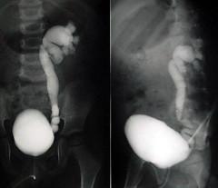 rvug004 (radiologiaum) Tags: clasificacin urologa vejiga cugm gamagrafadmsa cistogamagrafa reflujovesicoureteral
