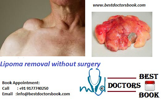 Lipoma Removal Cost In Hyderabad