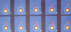 rvug008 (radiologiaum) Tags: urologa vejiga cistogamagrafa reflujovesicoureteral