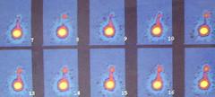 rvug008 (radiologiaum) Tags: urología vejiga cistogamagrafía reflujovesicoureteral