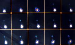 rvug007 (radiologiaum) Tags: urología vejiga cistogamagrafía reflujovesicoureteral