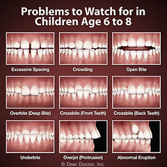Watch for These Developing Bite Problems with Your Child's Teeth https://t.co/P2g1pArzwU (marklcivindds) Tags: ifttt twitter dentist palm beach gardens dental care dentistry