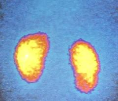 rvug010 (radiologiaum) Tags: clasificación urología vejiga cugm gamagrafíadmsa cistogamagrafía reflujovesicoureteral