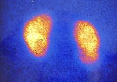 rvug009 (radiologiaum) Tags: clasificación urología vejiga cugm gamagrafíadmsa cistogamagrafía reflujovesicoureteral