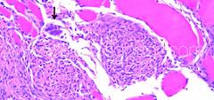 Phaeohyphomycosis in Atlantic salmon (Salmo salar) - Histopathology (Patologiaenacuicultura) Tags: fishdisease fishdiseases fishpathology fishhistopathology salmonpathology atlanticsalmondiseases atlanticsalmondisease atlanticsalmonpathology salmosalar phaeohyphomycosis exophiala muscle necrosis inflammation granuloma subcutaneousphaeohyphomycosis