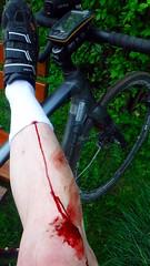 Some skin in the game (david_m.hn) Tags: radfahren cycling kurve cornering semislick wunde wound