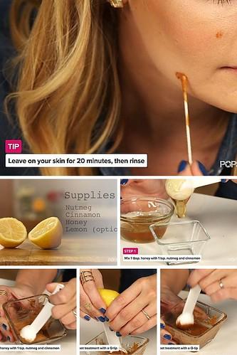 Best Beauty Diy : DIY Dark Spots and Acne Scaar Treatment...
