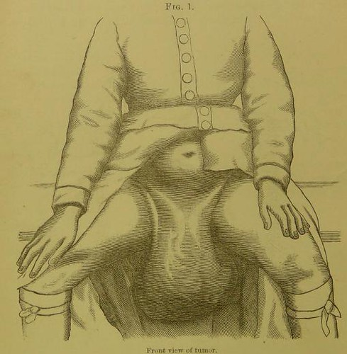 This image is taken from Page 2 of Elephantiasis arabum of the labia majora : a case of successful operation by excision