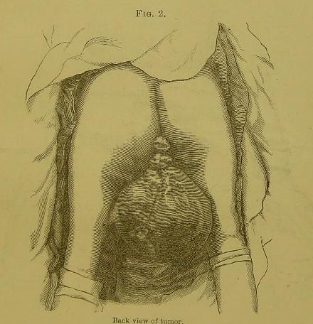This image is taken from Page 3 of Elephantiasis arabum of the labia majora : a case of successful operation by excision