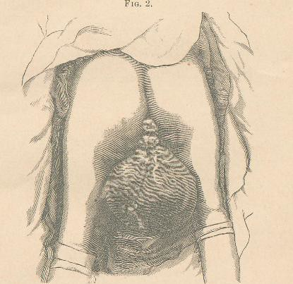 This image is taken from Elephantiasis arabum of the labia majora : a case of successful operation by excision