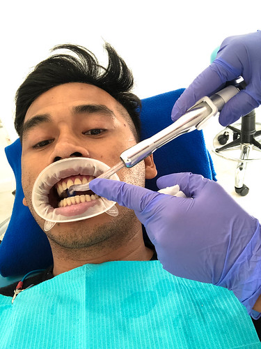 Affinity Dental Clinic Whitening Service (2 of 14)