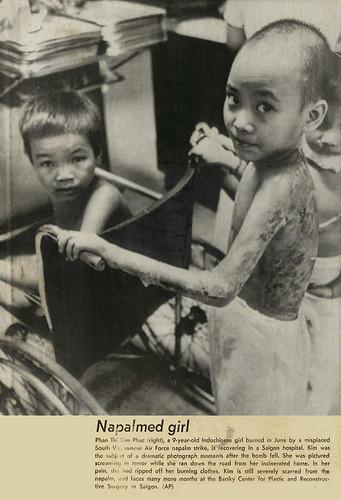 Napalmed Girl from Pulitzer Prize Winning Nick Ut Photo at Hospital
