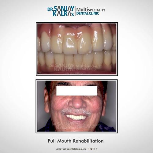Sanjay kalra Dental clinic in Chandigarh
