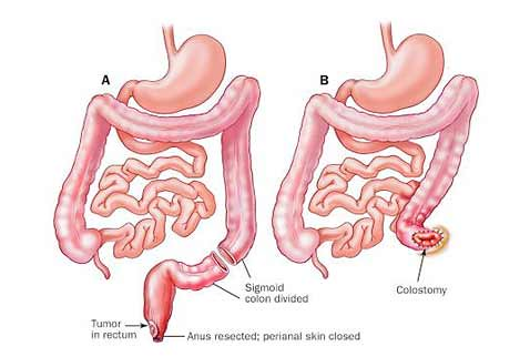 Abdominoperineal-Resection-1
