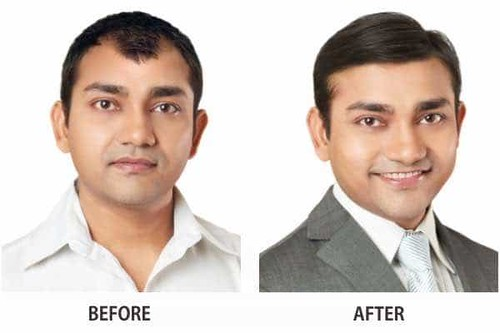 Hair Transplant in Kolhapur