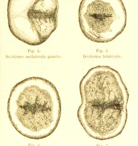 This image is taken from Page 19 of Chirurgie de l'uterus, du vagin et de la vulve