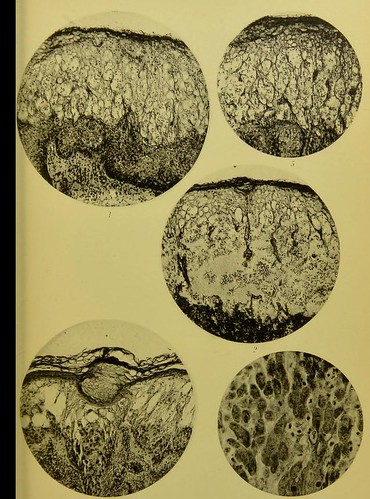This image is taken from Studies on the pathology and on the etiology of variola and of vaccinia [electronic resource]