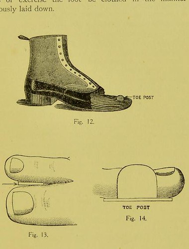 This image is taken from Page 13 of Flat-foot or splay-foot (valgus) [electronic resource]