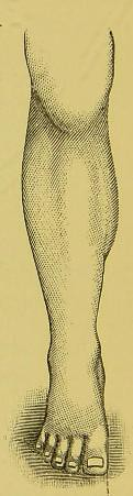 This image is taken from Page 10 of Flat-foot or splay-foot (valgus) [electronic resource]