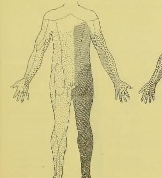 This image is taken from Page 681 of Rückenmarkstumor, mit Erfolg exstirpiert