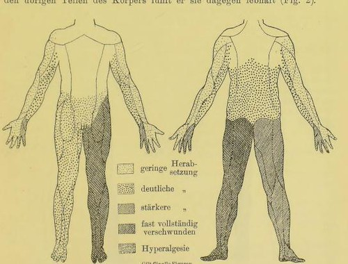 This image is taken from Page 677 of Rückenmarkstumor, mit Erfolg exstirpiert