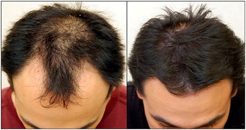 Hair Lace System Training In Chennai.