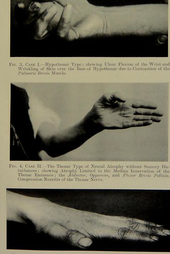 This image is taken from The neural atrophy of the muscles of the hand, without sensory disturbances : a further study of compression neuritis of the thenar branch of the median nerve and the deep palmar branch of the ulnar nerve