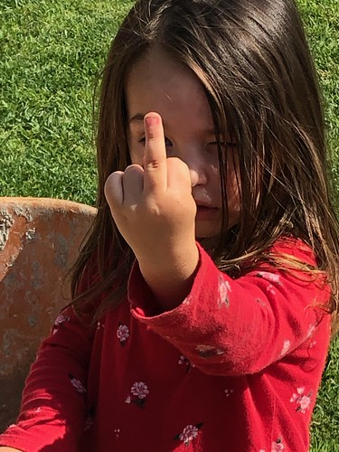 My granddaughter's bandage came off and she was telling her Papa who snapped this.