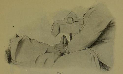 This image is taken from Page 101 of Zabludowski's Technik der Massage