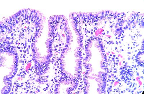 Lymphocytic gastritis