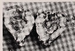 This image is taken from Page 4 of Brain abcess with pathological observations