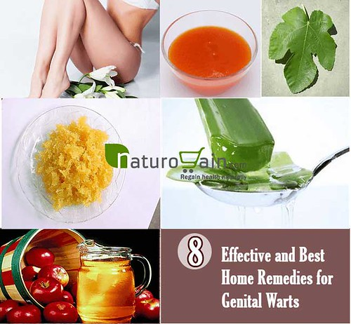 8 Best Home Remedies for Genital Warts