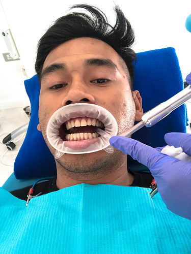 Affinity Dental Clinic Whitening Service (1 of 14)