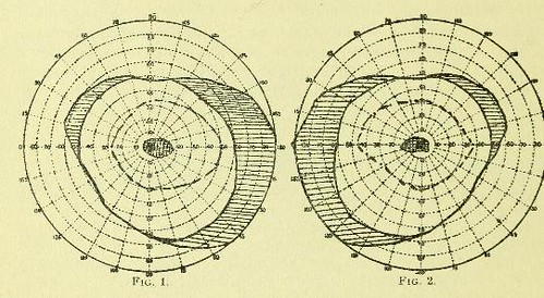 This image is taken from Page 2 of Partial optic nerve atrophy and central scotomas (so-called central amblyopia), apparently due to chronic lead poisoning / by G. E. de Schweinitz.