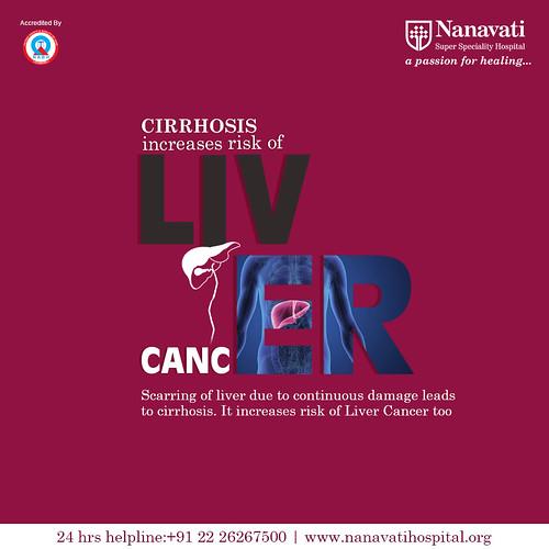 Liver Cancer Treatment at Nanavati